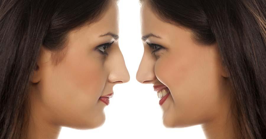 Risultati intervento di chirurgia estetica rinoplastica