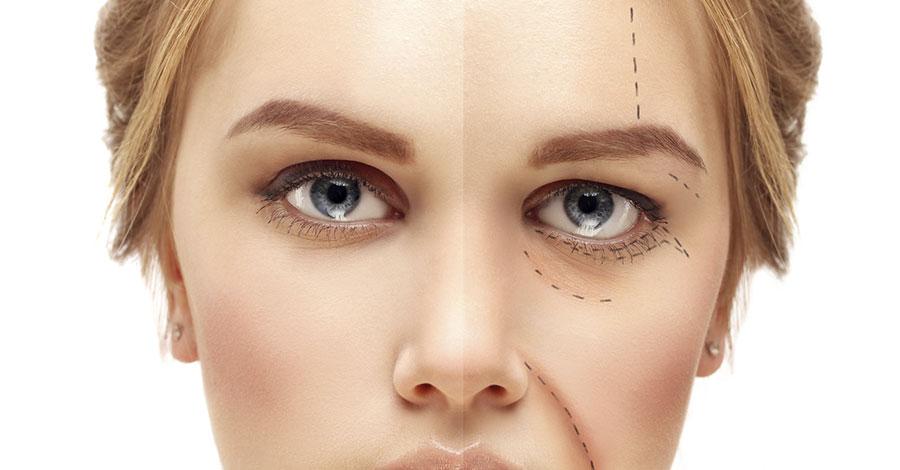 Blefaroplastica intervento chirurgico di ricostruzione delle palpebre